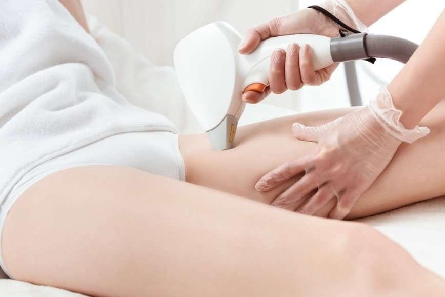 Брить или не брить: 5 мифов об эпиляции